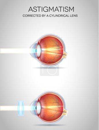 Eye vision disorders
