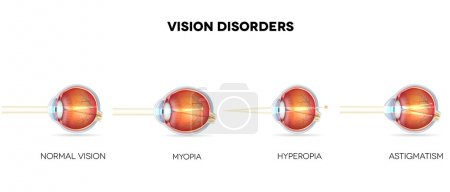 Eyesight disorders