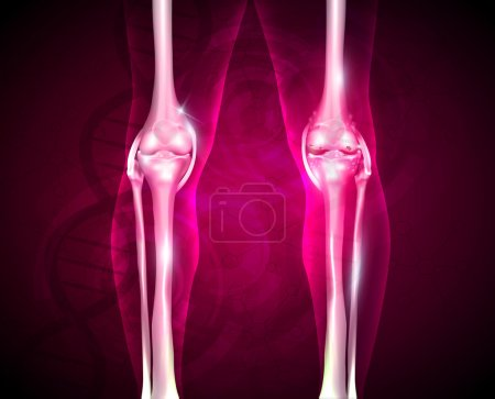 Osteoarthritis, painful joint and healthy joint