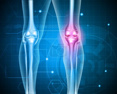 Knee pain abstract background