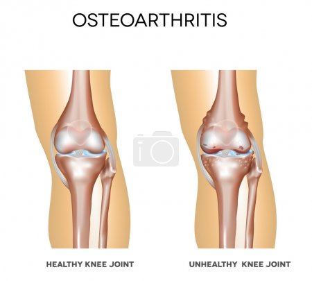 Healthy knee and knee with osteoarthritis
