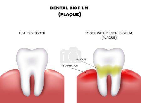 Illustration pour Plaque dentaire avec inflammation et dent saine sur fond blanc - image libre de droit