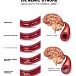 Постер, плакат: Blood clot formation in the cerebral artery