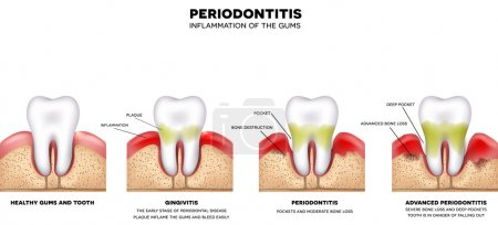 Periodontitis inflammation of the gums