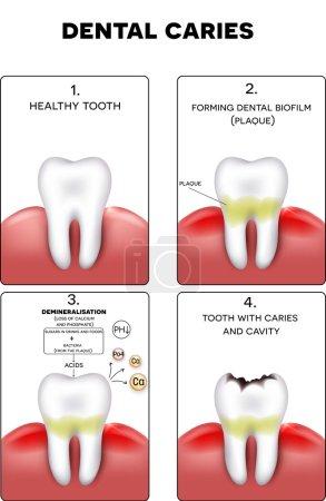 Illustration pour Formation de caries dentaires, plaque dentaire, perte de calcium, phosphate et finalement caries et cavité - image libre de droit