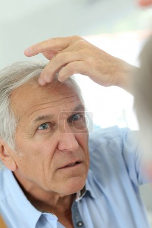 man concerned by hair loss
