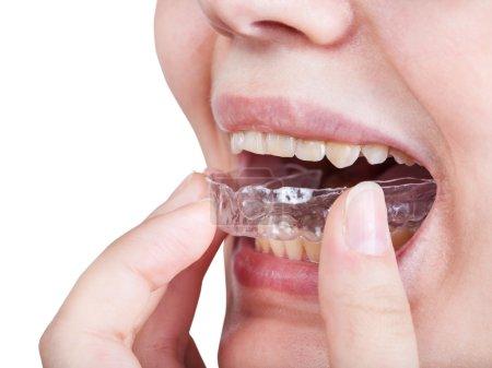 girl fixes aligner for orthodontic correction