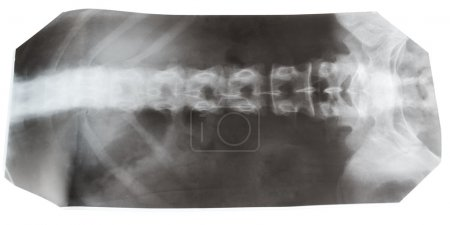 X-ray picture of human spinal column isolated