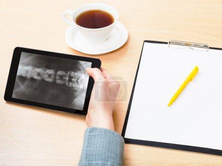 Medic analyzes vertebral column on tablet pc