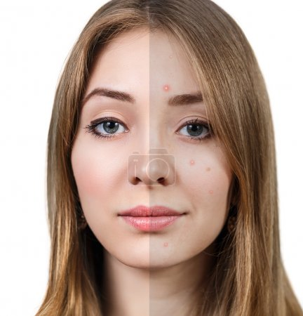 Woman with problem skin before and after.