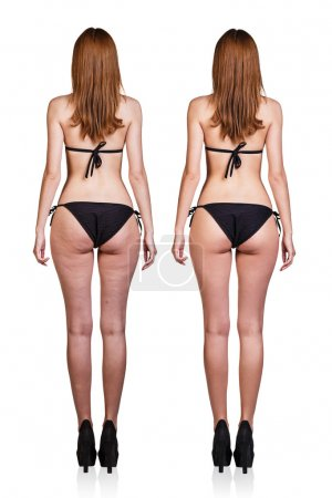 Female buttocks with cellulite and after treatment
