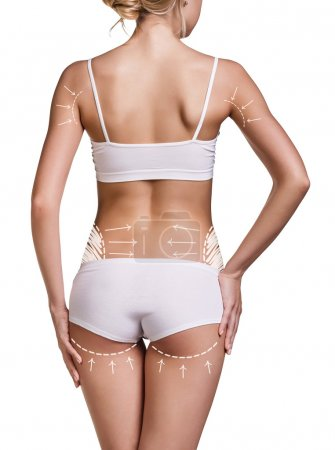 Slim womans body with correction lines