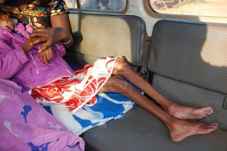 Photo pour Auguste intervention 2014-Tanzanie-Afrique-le des frères franciscains de l'organisme sans but lucratif mawaki pour sauver un enfant malade avec le sida et avec une forte malnutrition. - image libre de droit