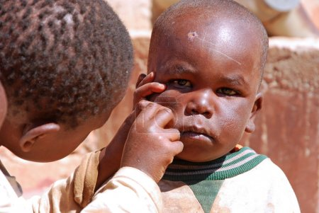 Photo pour August 2014-Village of Pomerini - Tanzania- Africa-African children of the Franciscan Mission of Pomerini for humanitarian aid against AIDS while cleaning your face from dirt and scabs of the disease. - image libre de droit