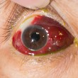 Close up of the large amount of sub conjunctival h...