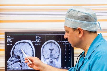Doctor examining an MRI scan