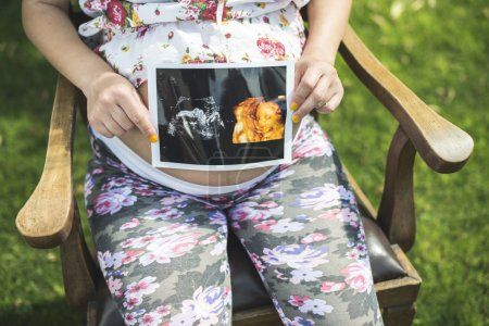 Pregnant woman holding picture of womb