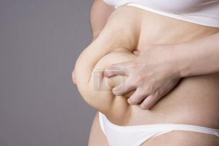 Photo pour Obésité corps féminin, gros ventre femme gros plan sur fond gris - image libre de droit