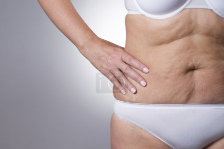 Flabby stomach of an elderly woman close-up