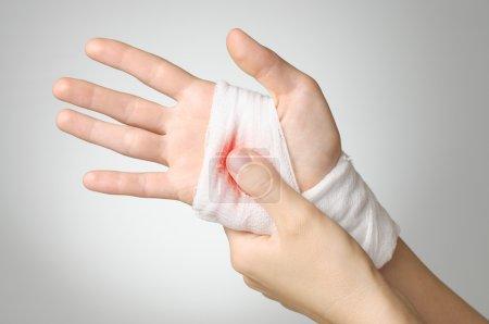 Foto de Mano herida con vendaje de gasa blanco sangriento - Imagen libre de derechos