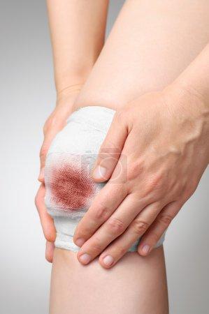 Foto de Lesionada rodilla dolorosa con vendaje de Gasa sangriento - Imagen libre de derechos