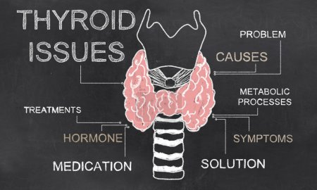 Photo for Thyroid Issues illustrated with Chalk on Blackboard - Royalty Free Image