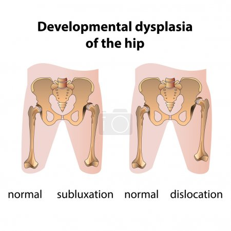 Dysplasia of the Hip