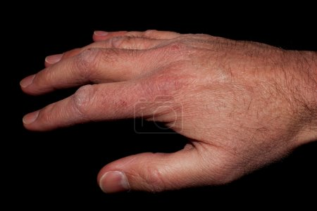 Photo pour Gros plan de la main droite d'un homme avec peau sèche - image libre de droit