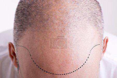 Photo pour Vue de dessus de la tête des hommes avec une ligne de cheveux recule - image libre de droit