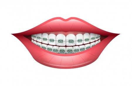 Dental Braces, Orthodontics, Dentistry, Teeth