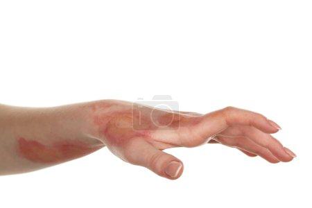 Horrible burns on female hand