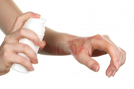 Treatment of burns by spray on female hand isolated on white