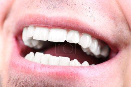 Smiling man after visit dentist om blurred background, macro view