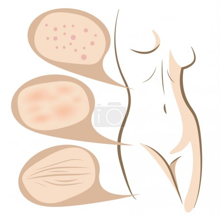 Illustration for Woman body concept of anti aging procedures on skin, vector line sketch - Royalty Free Image