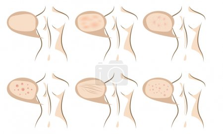 Body concept of anti aging procedures on skin