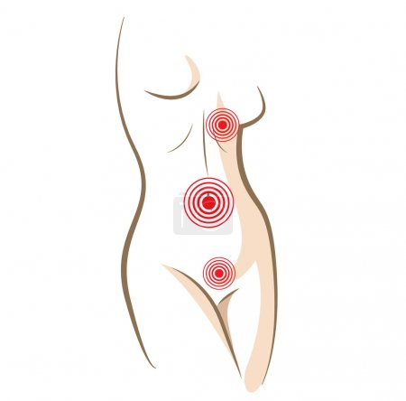 Illustration for Concept of woman pain in body, vector sketch - Royalty Free Image