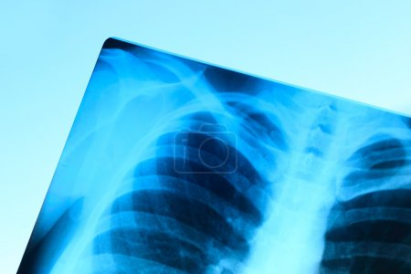 X-ray image of chest