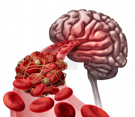 Brain Blood Clot