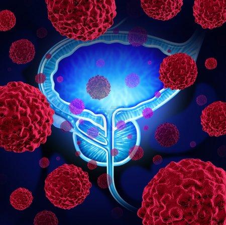 Photo pour Cancer de la prostate risque médical concept comme les cellules cancéreuses dans un corps masculin attaquer l'appareil reproducteur comme un symbole des risques et de traitement de diagnostic de croissance humaine de tumeur maligne - image libre de droit