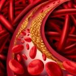 Постер, плакат: Artery Disease