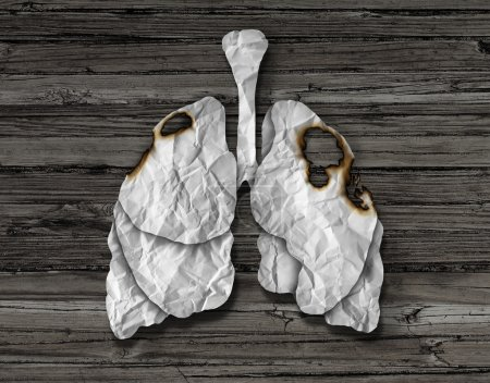 Human Lung Cancer Concept