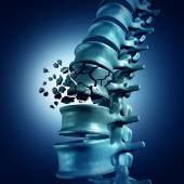 Poster Spinal Fracture medical