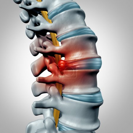 Foto de Herniated disk concept and spine pain diagnostic as a human spinal system symbol as medical health problem and anatomy symbol with the skeletal bone structure and intervertebral discs closeup. - Imagen libre de derechos