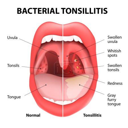 Tonsillitis bacterial