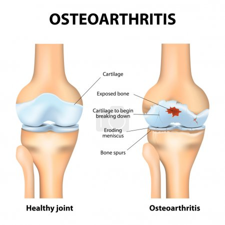Osteoarthritis. Arthritis or pain within a joint. degenerative joint disease. Cartilage becomes worn. This results in inflammation, swelling, and pain in the joint.