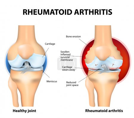 Illustration for Rheumatoid Arthritis or RA is an inflammatory type of arthritis that usually affects knees. Rheumatoid arthritis of the knee the auto immune disease. The body's immune system mistakenly attacks healthy tissue. - Royalty Free Image