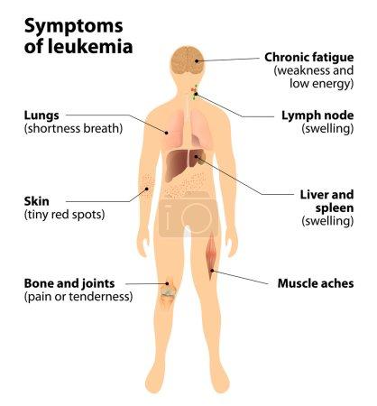 symptoms of  leukemia. blood cancer