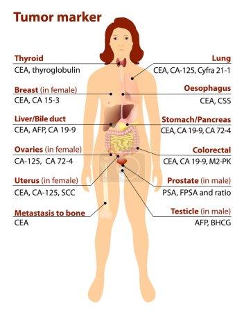 Illustration for Tumor marker or biomarker. - Royalty Free Image