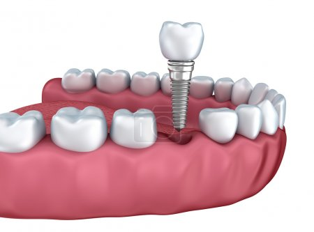 A close-up view of lower teeth and dental implants isolated on white