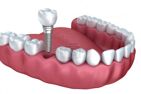 3d lower teeth and dental implant isolated on whit...